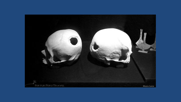 Tour the Larco Museum to see evidence of ancient brain surgery