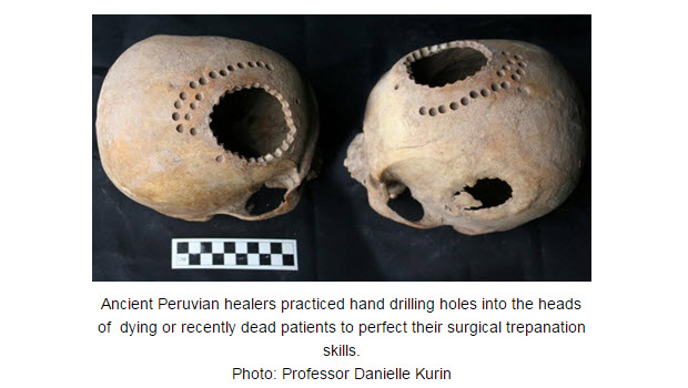 The practiced craft of ancient Peruvian skull surgery