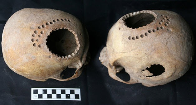 Ancient Peruvian healers practiced hand drilling holes into the head of a dying or recently dead patient to perfect their surgical trepanation skills